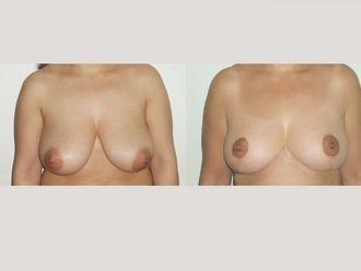 Reducción senos - 589666