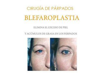 Blefaroplastia-596772
