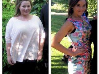 Antes y despues de perdida de peso