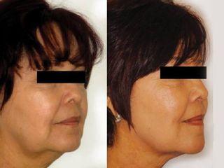 Antes y de despues de tratamiento para la flacidez facial y arrugas