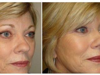 Antes y despues de lipofilling