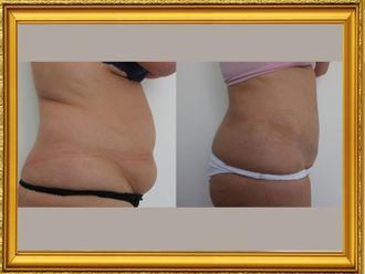 Abdominoplastia - 648363