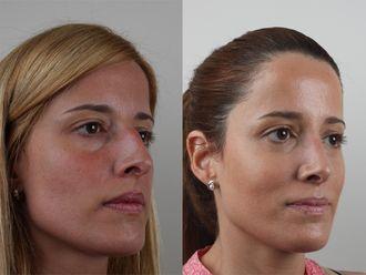 Cirugía estética-689858