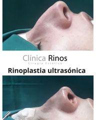 Rinoplastia - Clínica Rinos
