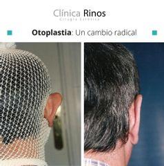 Otoplastia - Clínica Rinos