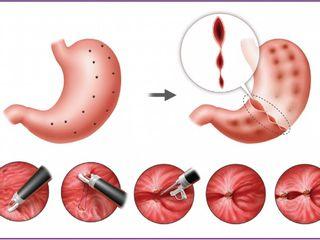 POSE (Primary Obesity Surgery Endoluminal)
