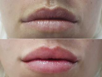 Aumento labios - 629968