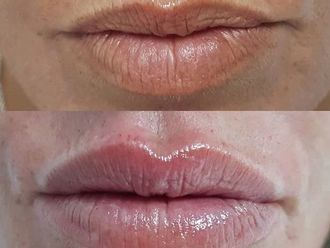 Aumento labios - 629972