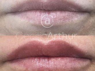 Aumento labios-684765