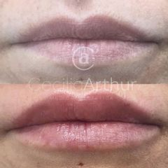 Aumento de labios - Dra. Cecilia Arthur