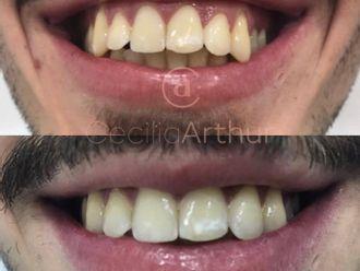 Aumento labios-684767