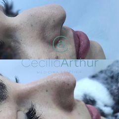 Rinomodelación - Dra. Cecilia Arthur