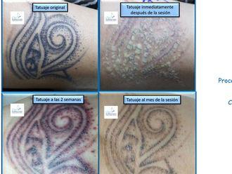 Eliminación de tatuajes-493524