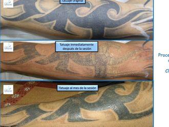 Eliminación de tatuajes-493525
