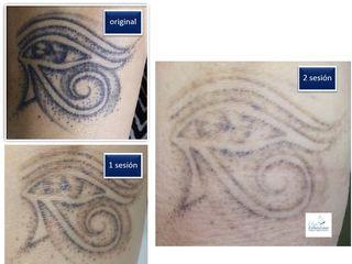Tatuaje de Miriam