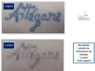 Eliminación de tatuajes-493830