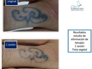 Antes y después Eliminación de Tatuajes
