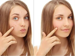 Antes y despues de peeling medico antiacne
