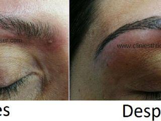 Antes y despues de micropigmentacion de cejas