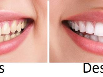 Blanqueamiento dental - 596505