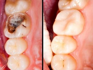 Antes y despues de caries