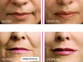 Aumento labios - 596518