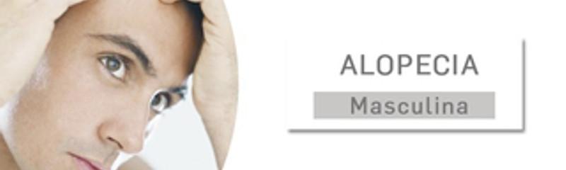 Tratamientos para combatir la alopecia en Clínicas DH