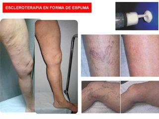 Antes y después Esclerosis varices