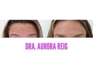 Bótox - Aurora Reig