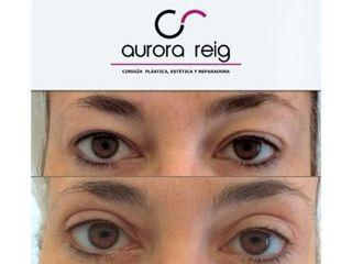 Blefaroplastia - Aurora Reig