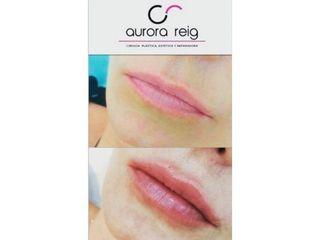 Aumento de labios - Aurora Reig