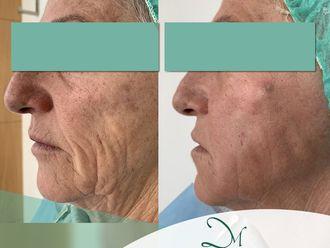 Eliminación arrugas-637844