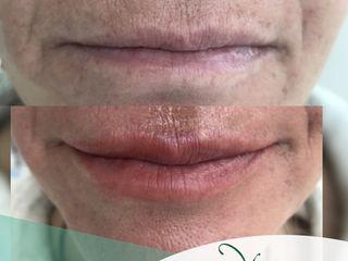 Antes y después Relleno de labios