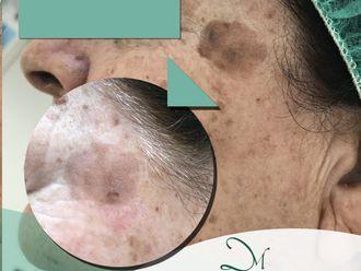 Tratamiento antimanchas - 637864