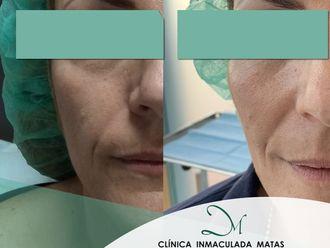 Rellenos faciales - 637865