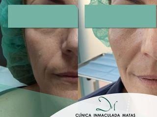 RELLENO DE POMULOS - ANTES Y DESPUES