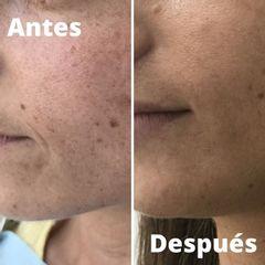Antes y después Tratamientos antimanchas - Clínica Inmaculada Matas