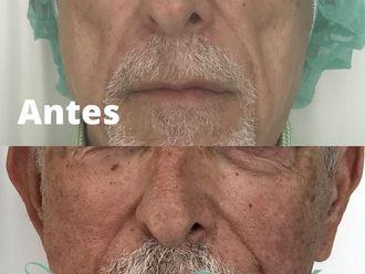 Rellenos faciales - 684757