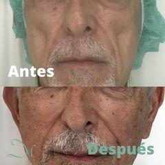 Antes y después Rellenos faciales - Clínica Inmaculada Matas