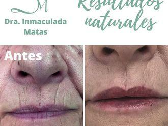 Aumento labios-684758