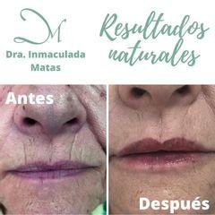 Antes y después Aumento de labios - Clínica Inmaculada Matas