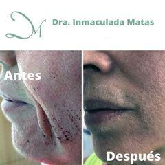 Antes y después Hilos tensores - Clínica Inmaculada Matas