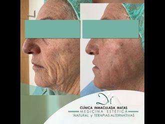Rejuvenecimiento facial-740946