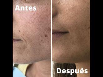 Tratamiento antimanchas-740948