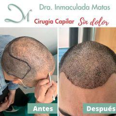 Implante Capilar - Clínica Inmaculada Matas