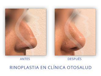 Cirugía estética-623165
