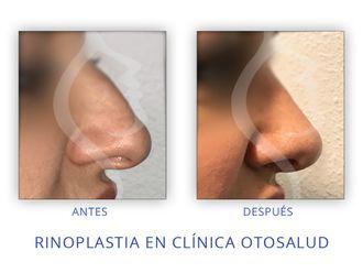 Cirugía estética-623166