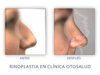 Cirugía estética-623177