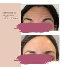 Antes y después Arrugas frontales-Tratamiento Bótox
