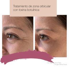 Antes y después Tratamiento de arrugas perioculares con Bótox